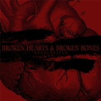 Brokenkites | Broken Hearts and Broken Bones